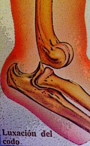 Incapacidad temporal | Abogados especialistas incapacidades